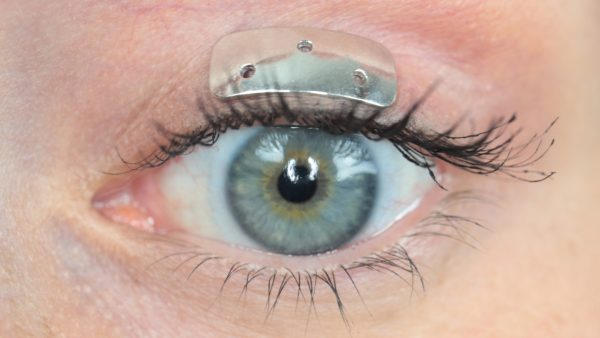Oculid® Gold Slim implant