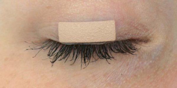 OCULID® External Eyelid Weights